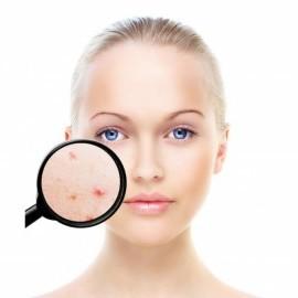 Acneea poate fi ameliorata cu ajutorul vitaminei D si a acizilor Omega-3