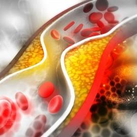 Sa intelegem colesterolul si trigliceridele